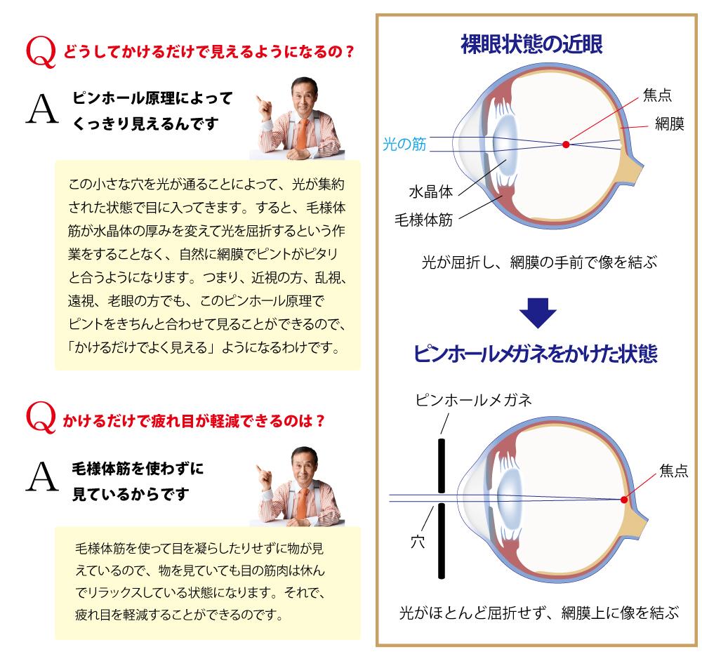 ビジョンプロテクトQ&A